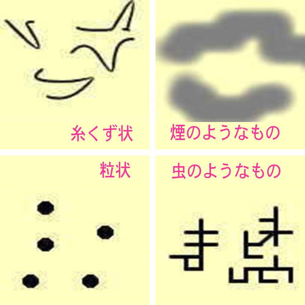 飛蚊症の見え方(糸くず状、粒状、煙のようなもの、虫のようなもの)